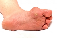 Causes of Bunions