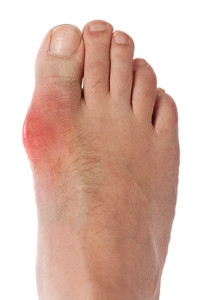 Causes of Gout
